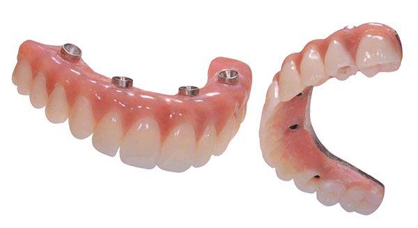 implantologia opole