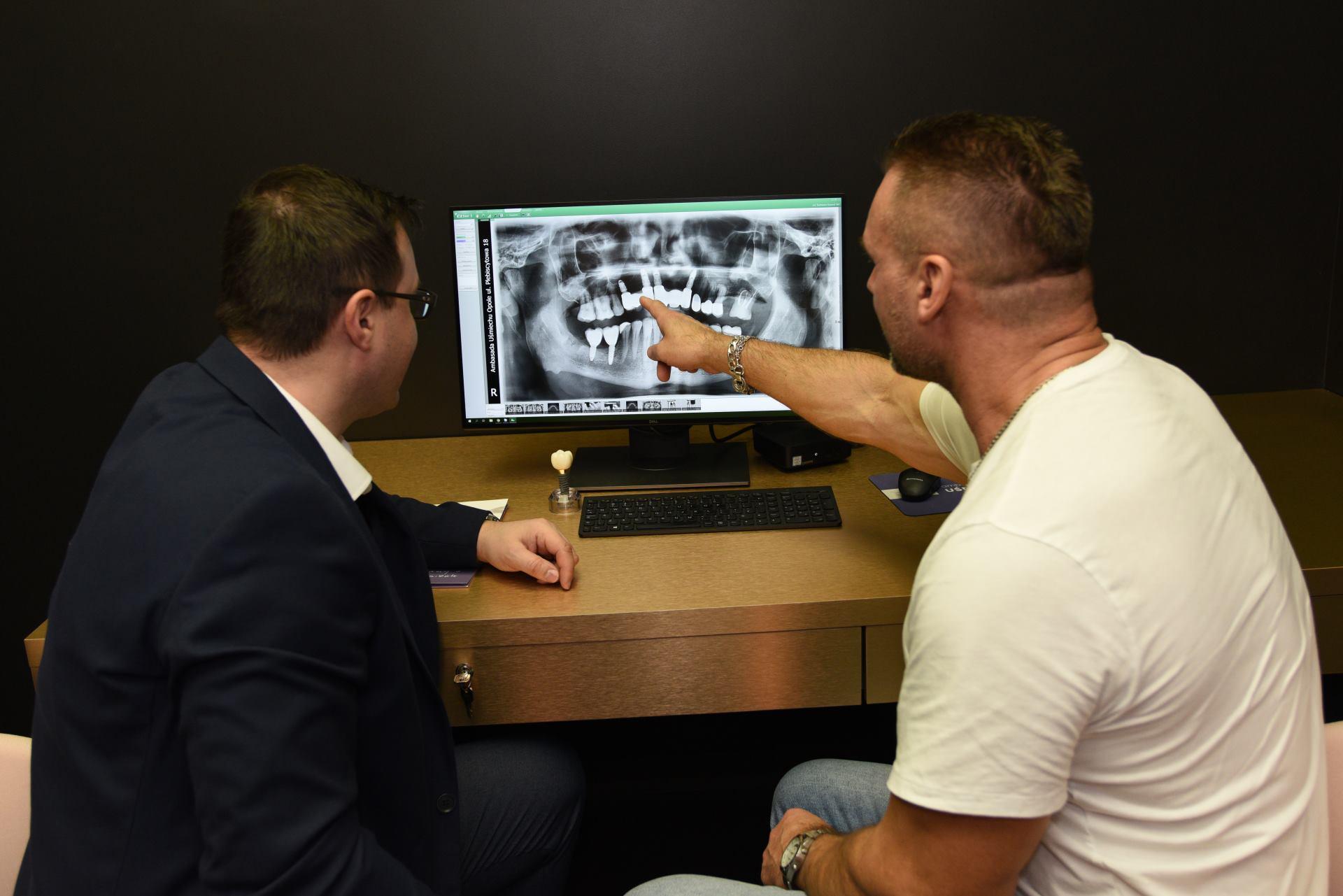 implant zęba Opole