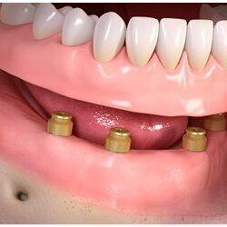 Proteza zębowa na implantach Opole