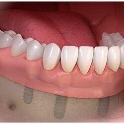 Proteza zębowa na implantach