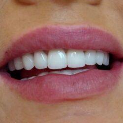 Licówki zębowe Opole
